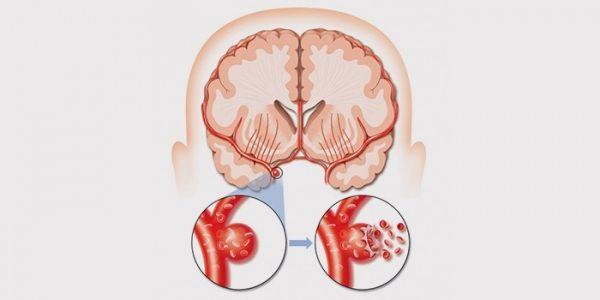 Инсульт: особенности, первопричина и реабилитация